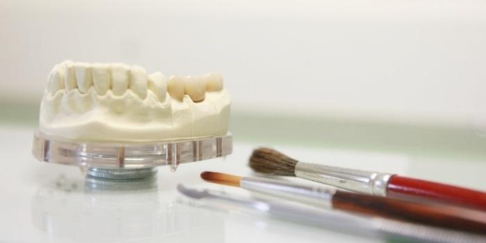 perfekt sitzender Zahnersatz aus dem praxiseigenen Dentallabor - Zahnarztpraxis Hamburg Peer Meier