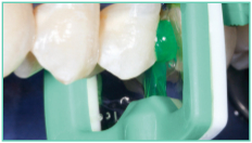Published with the permission of DMG Dental-Material Gesellschaft mbH